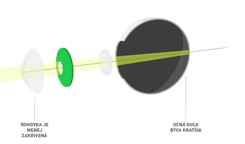 39b0fb1b3 Operácia ďalekozrakosti - Očná klinika UVEA